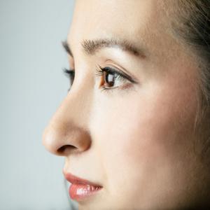 鼻中隔延長でギプス固定を外すことで曲がる失敗例がある