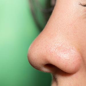 鼻プロテーゼ挿入の失敗~グラグラ動く例