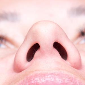 鼻中隔延長の手術時間60分は危険?~失敗例を考察