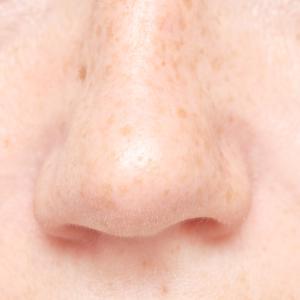 小鼻縮小のバリエーションの多さ~内側法や外側法だけじゃない真皮弁を使った修正