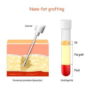脂肪吸引の重篤な後遺症や今年に起きた医療事故まとめ