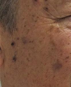 わか皮ふ科クリニック 液体窒素療法