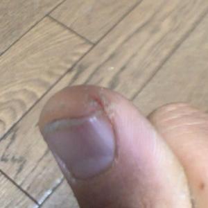 指先のひび