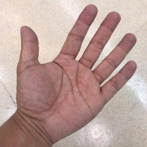 左腕・左手・左手指
