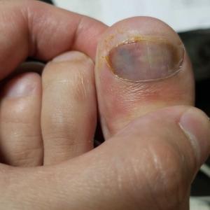 足指がおかしい