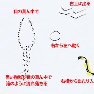飛蚊症と光視症