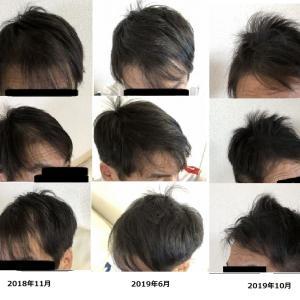 Capillus RXを1年3月の使用で反響のあった日本人の前頭部の回復の時系列画像