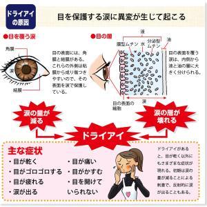 ドライアイで結膜炎・・・マイボーム腺のケアが大切♡