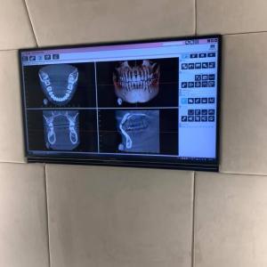 診療台の前のテレビを大きく新しいのにしました