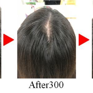 増毛|髪のボリュームが戻って頭皮が見えなくなり若く見られました!