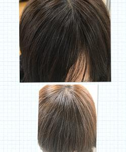 増毛|前髪を増やしたい方、必見ですよ
