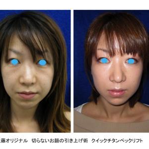 DR.近藤 オリジナル 切らないお顔のリフトアップ術  チタンペックリフトⓇ & クイックチタン