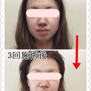 顎のたるみ、二重あご を緩和させ、スッキリとした小顔に!
