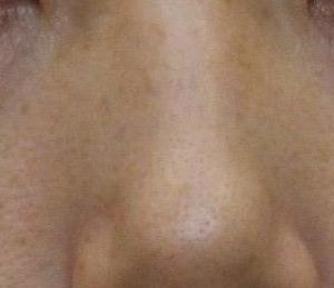 目の下のクマ 経結膜脱脂 むっちゃ腫れた症例