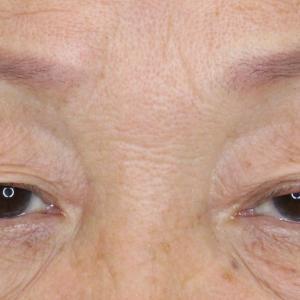 74歳 眼瞼下垂症手術