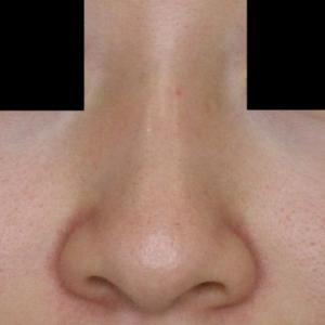 スタッフの小鼻縮小術1ヶ月の経過