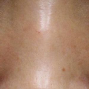スタッフの目の下のクマ 経結膜脱脂の経過
