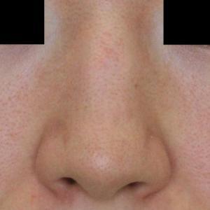 小鼻縮小術 1ヶ月の経過