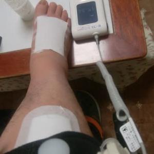 超音波骨折治療セーフス!