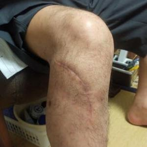 右足脛骨高原骨折の完治へ!
