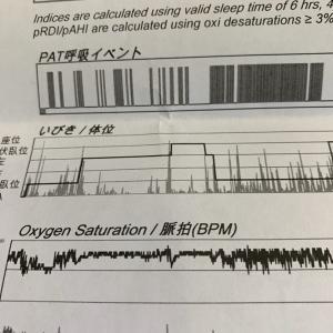 無呼吸症候群の検査結果でわかったこと