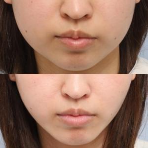 脂肪吸引:頬部・顎下脂肪吸引の約4ヶ月後