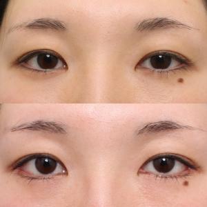 下まぶた整形:垂れ目形成術+目尻切開1ヶ月目