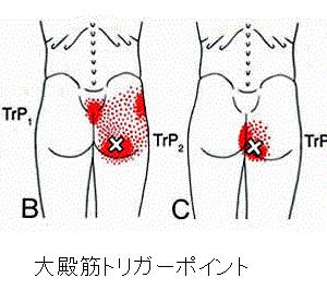 椅座位で生ずる右大腿後側痛に、大殿筋起始部トリガーポイント刺鍼が有効な例(85歳、女性)