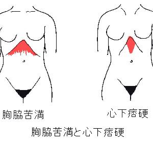 心下痞硬・胸脇苦満の病態生理と針灸治療
