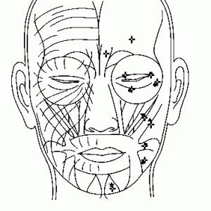 顔面痙攣と眼瞼痙攣の病態と針灸治療の適否