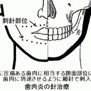 歯周病に対する女膝の灸について Ver.1.2