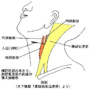 頸動脈洞刺の意義 ver.1.1
