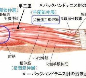 現代鍼灸でのツボの効かせかた① 上肢編