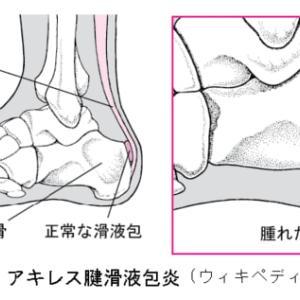 アキレス腱炎付着部炎に下腿三頭筋の運動針が有効だった症例(73歳女性、主婦)