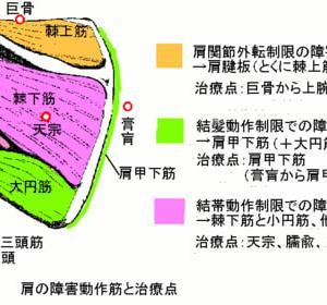 肩関節ADL制限の鍼灸治療 その1   肩関節外転制限
