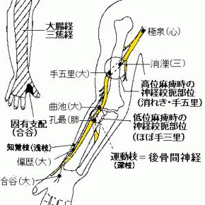 橈骨神経高位麻痺による下垂手の針灸治療 Ver.3.0