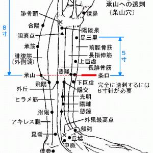 「条口から承山への透刺」その適応 Ver.1.1