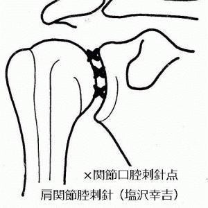 凍結肩に対するROM拡大の刺針手技