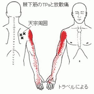 左肩関節部痛に、棘下筋集中刺針が有効だった自験例(65歳、男性)