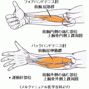 バックハンドテニス肘の病態と筋と筋付着部への運動針 Ver.3.2