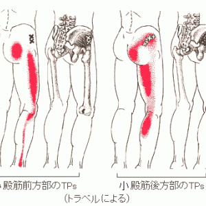 大腿外側痛の病態把握と針灸治療