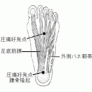 足底筋膜炎の針灸治療 Ver 2.0