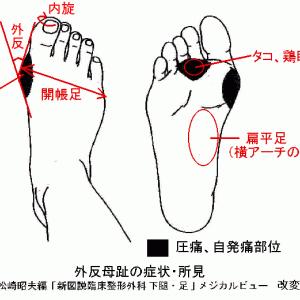 針灸院における外反母趾の診療 Ver. 2.0