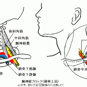 腕神経叢刺針部位の検討 Ver1.1