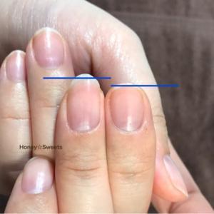 【爪は変わります!】美爪になりたい人は見てね♡