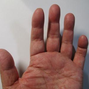 「私はコレで会社を辞めました」の真似ができない  左手の小指が曲がったままに