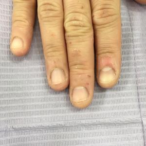 噛みグセで深爪になってしまった爪も縦長爪に!