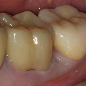 奥歯のオールセラミック、ジルコニア冠