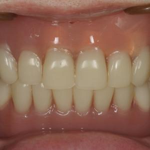 術後36年 インプラントで支える入れ歯