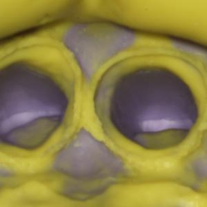 """""""歯の型取りは顕微鏡でチェック"""""""